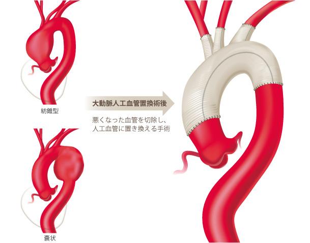 大動脈疾患:大動脈瘤|倉敷中央病院心臓病センター心臓血管外科|岡山 ...