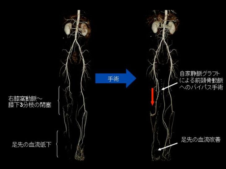 閉塞 性 動脈 硬化 症