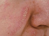青羽蟻形羽隠しにより顔に生じた皮膚炎の例