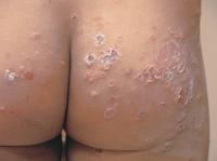 歳の子供のお尻にできた とびひ(伝染性膿痂疹の例)