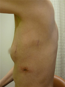fig.4 完全胸腔鏡手術の皮膚切開