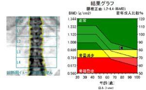 骨塩定量解析データ