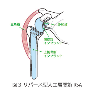 肩関節について 図3