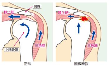 腱板断裂 図