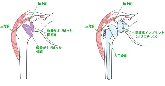 反復性肩関節脱臼 図