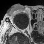 眼瞼腫瘍の高精細T1