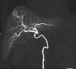 IVR-CT 治療対象2