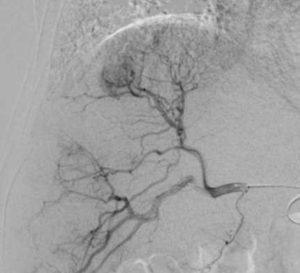 IVR-CT 治療対象3