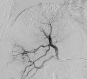 IVR-CT 治療対象4