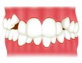 叢生(歯並びのでこぼこ、八重歯、乱杭歯)