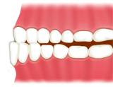 下顎前突(受け口、反対咬合)