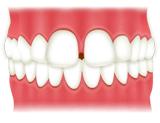 空隙歯列(隙っ歯)