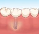 補綴治療(ブリッジ、入れ歯、インプラント等)