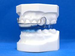 あごの関係を改善する装置(バイオネーター)