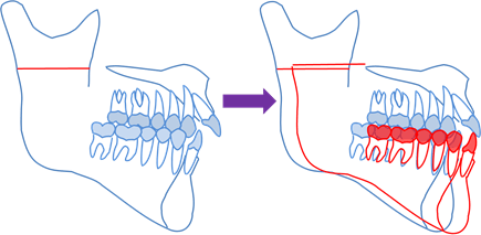 下顎枝矢状分割術(前方移動)