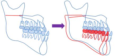 下顎枝矢状分割術(後方移動)