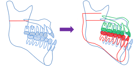 上顎、下顎両方の手術