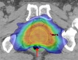 図1 前立腺IMRT線量分布図