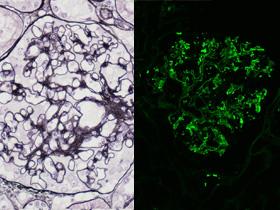腎生検PAM染色/蛍光抗体法