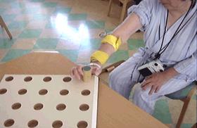 随意運動介助型電気刺激装置(IVES)を用いた上肢機能トレーニングの様子